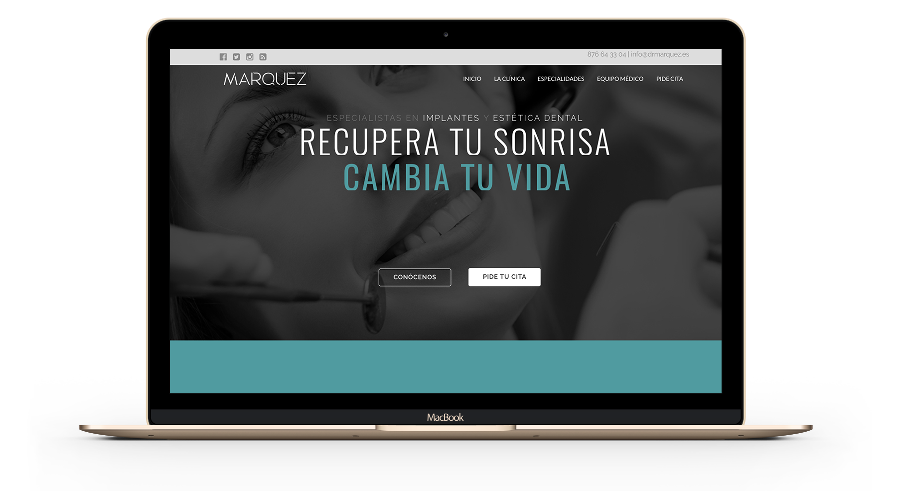 diseño web para clinica dental